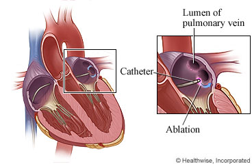 Catheter ablation in the heart
