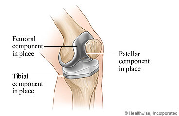 Picture of a knee replacement components