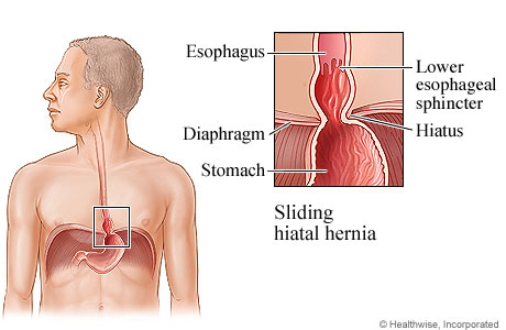 What foods should you avoid if you are diagnosed with a hiatal hernia?
