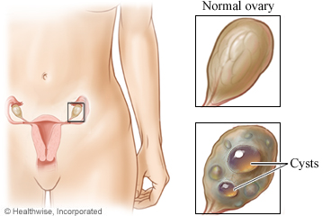 Normal ovary and ovarian cyst