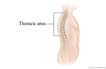 The spine, showing the upper and middle back (thoracic area)