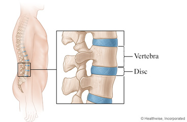 Discs of the spine
