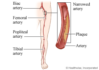 Artery in leg narrowed with plaque