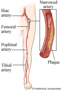 Leg artery narrowed by plaque