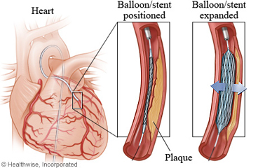 Balloon and stent in a coronary artery