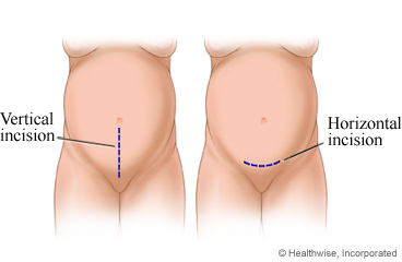 Caesarean incisions, both vertical and horizontal