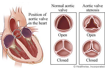 Normal aortic valve and a valve with stenosis