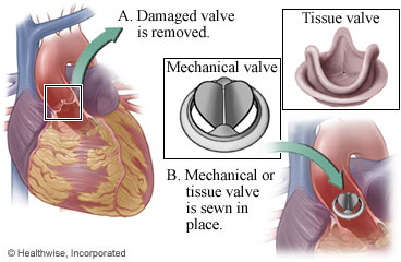 Mechanical and tissue valves and where they fit in the heart