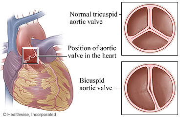 Picture of normal and bicuspid aortic valves