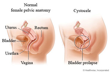 Normal female pelvic anatomy and of cystocele