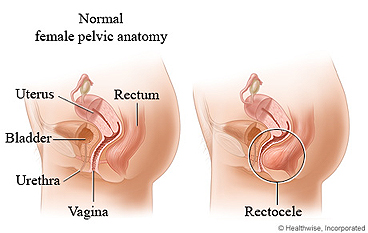 Normal female anatomy and rectocele