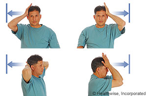 Picture of the hands-on-head strengthening exercise