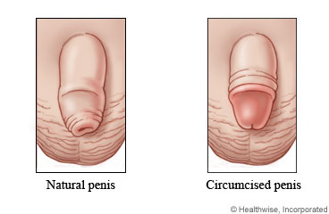 Natural and circumcised penises