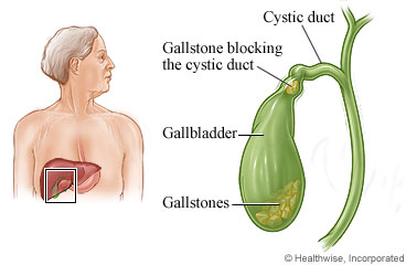 Gallstone in cystic duct