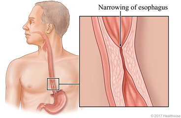 Esophagus with detail of narrow section