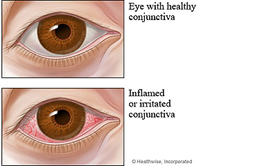 Picture of a healthy eye and an eye with pink eye