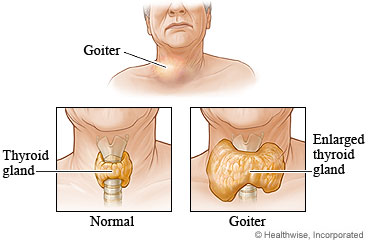 A normal thyroid gland and a goiter