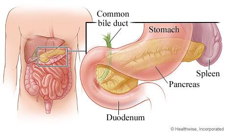 pancreatitis - topic overview, Cephalic Vein