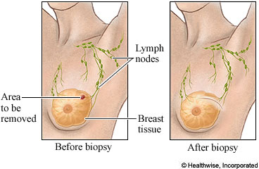 Before and after breast biopsy