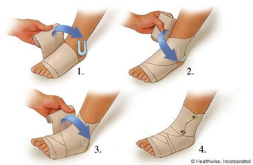 Wrapping a sprained ankle with a compression bandage