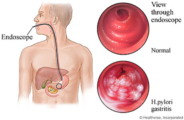 Gastritis as seen through endoscope