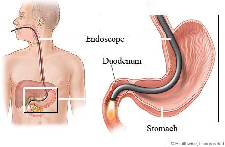 Endoscopy porn
