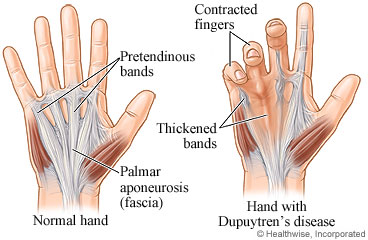 Normal hand structures and a hand with Dupuytren's contracture