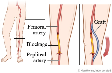 A femoropopliteal bypass surgery