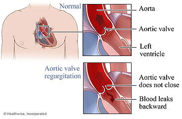 Normal aortic valve and aortic valve regurgitation