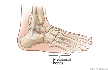 Skeletal view of metatarsal bones of the foot
