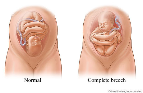 Sex position during pregnancy pdf fetal ultrasound test overview