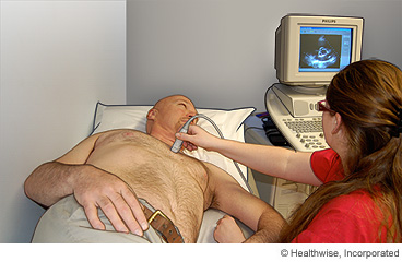 Man getting an echocardiogram