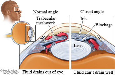 Structures affected by closed-angle glaucoma