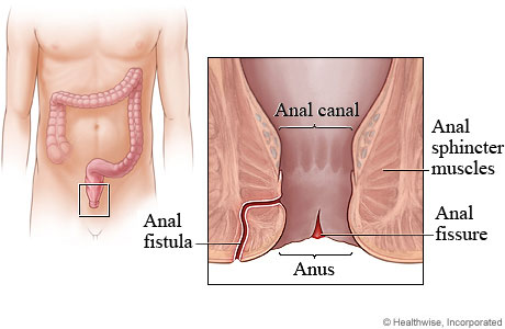 Medicine for anal fissure