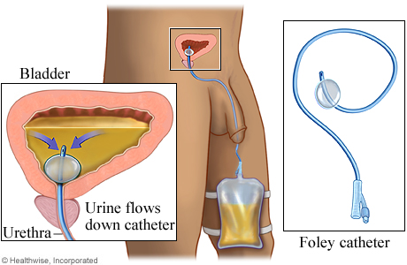 conditions urinary catheterization pages living withaspx