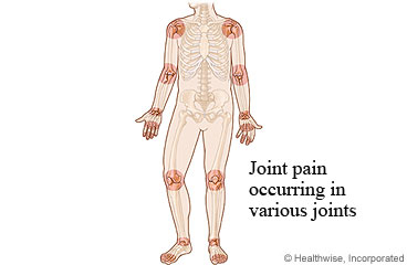 Picture of joint pain regions associated with rheumatoid arthritis