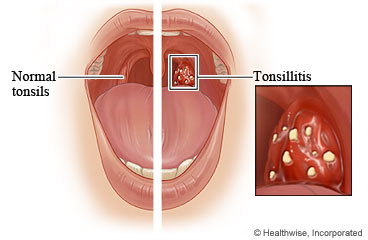 Normal tonsils and tonsillitis