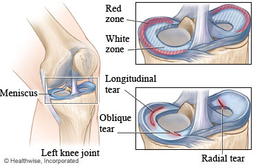 Meniscus and meniscus tear