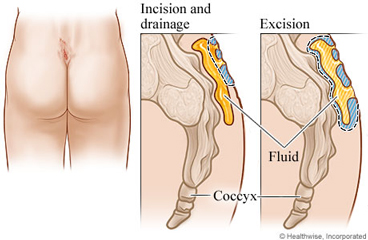 Location and excision of a pilonidal cyst