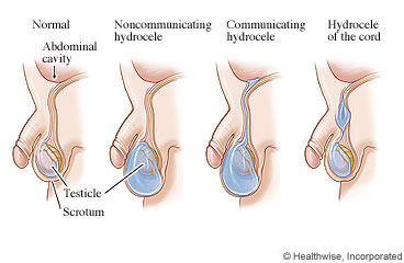 Normal scrotum and types of hydroceles