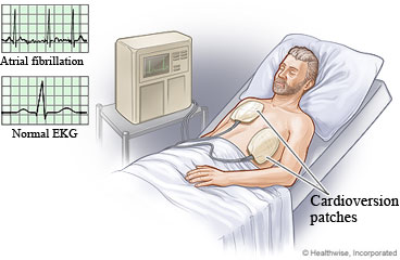 Electric cardioversion
