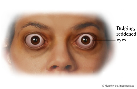 Bulging eyes caused by thyroid disease
