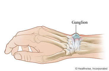 Picture of dorsal wrist ganglion