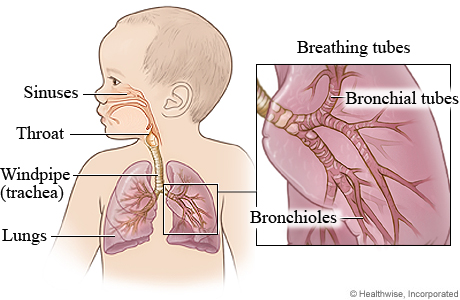 How To Naturally Treat Respiratory Infection