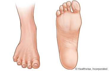 Picture of top and bottom of foot