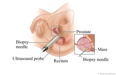 Transrectal prostate biopsy with detail showing where needle is placed