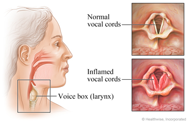 Location of the voice box in the neck, with detail of a normal vocal cord and an inflamed vocal cord