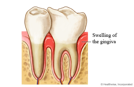 Teeth with swollen gingiva