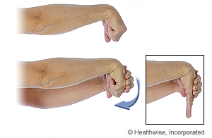 Picture of the wrist extensor stretch