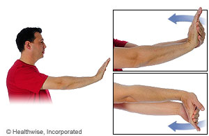 Picture of the wrist flexor stretch